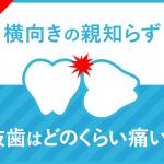 【横向きの親知らず】抜歯の痛みはどのくらい?意外な結果だった抜歯体験