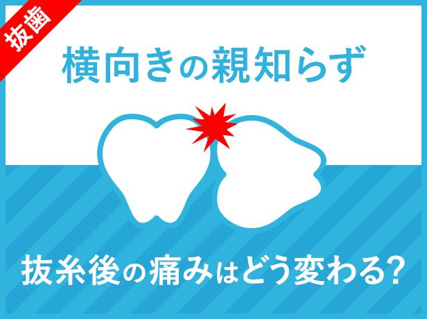 【横向きの親知らず】抜糸後の痛みはどう変わる?抜歯後7日目〜14日目の痛みの経過まとめ
