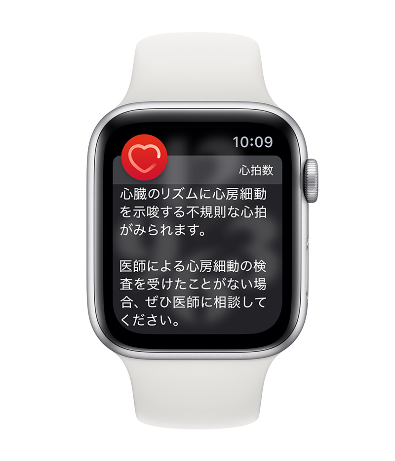 Apple Watch 不規則な心拍の通知機能