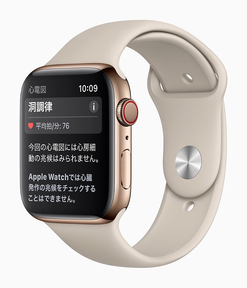 Apple Watch 心電図アプリケーション