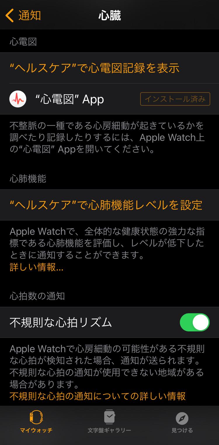 Apple Watch 不規則な心拍の通知機能を設定する