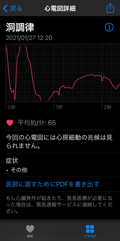 Apple Watch/iPhone 心電図のデータをPDFで出力する